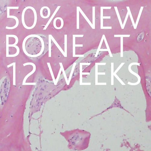 50-new-bone-at-12-weeks-500x500